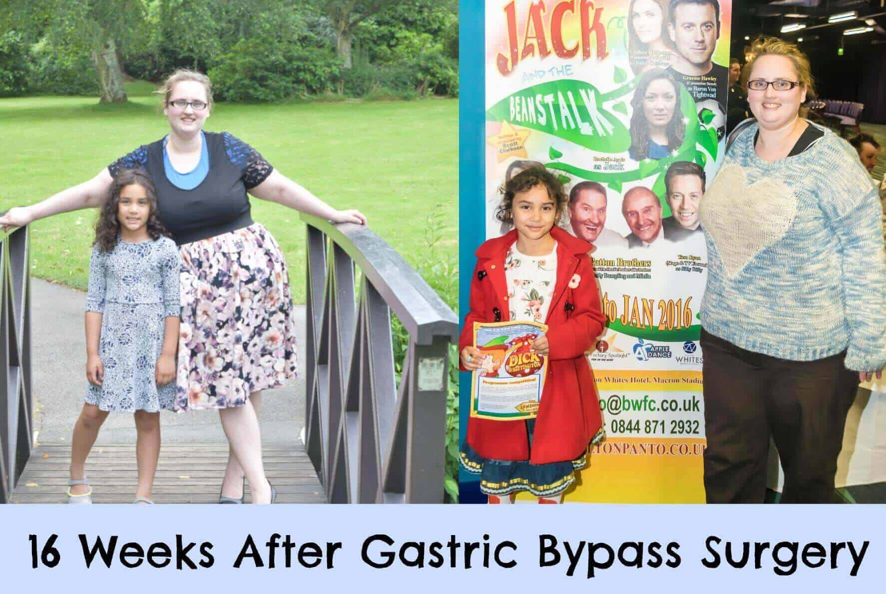 16 Weeks After Gastric Bypass Surgery The Inspiration Edit