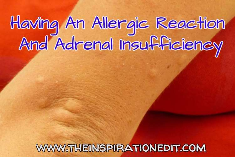 allergic reaction and adrenal insufficiency