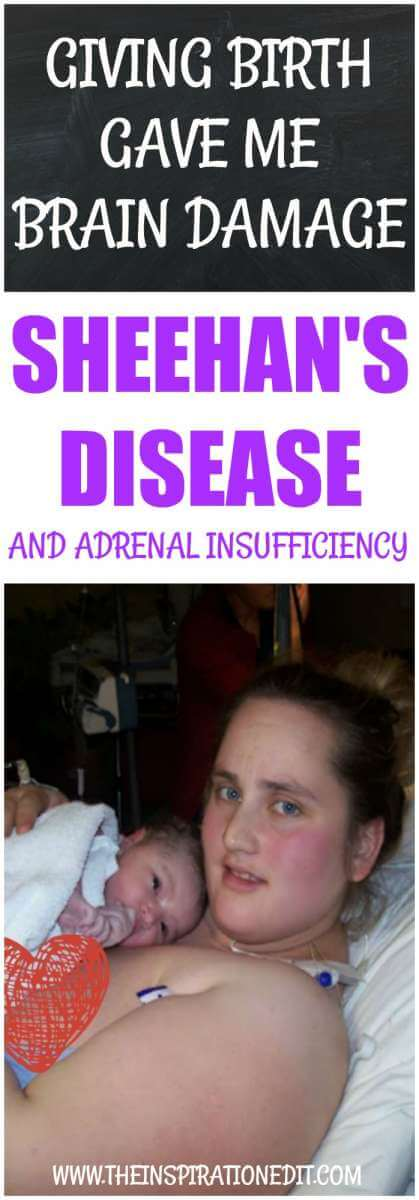 SHEEHANS DISEASE