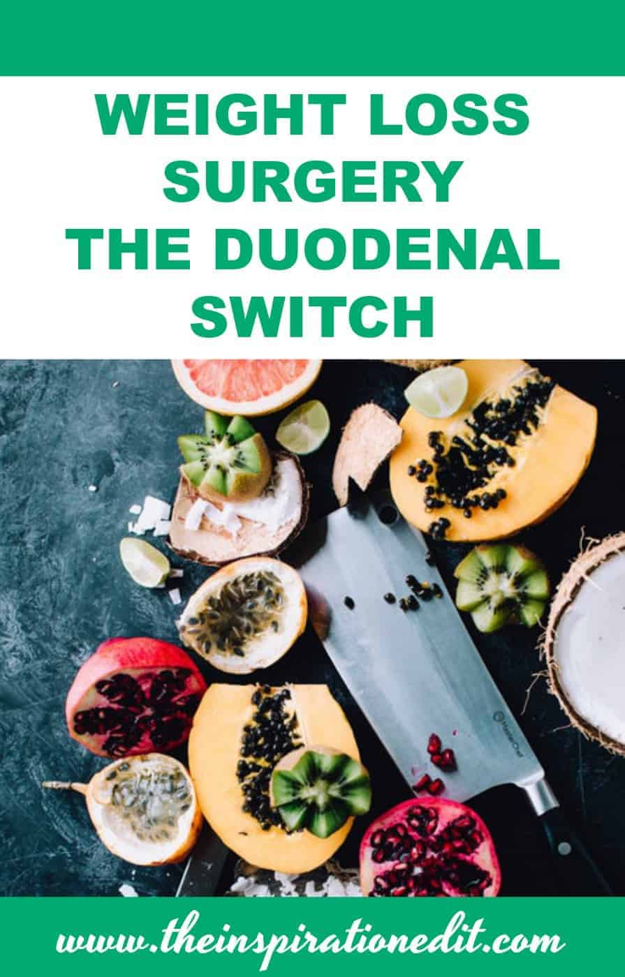 Duodenal Switch weight loss surgery