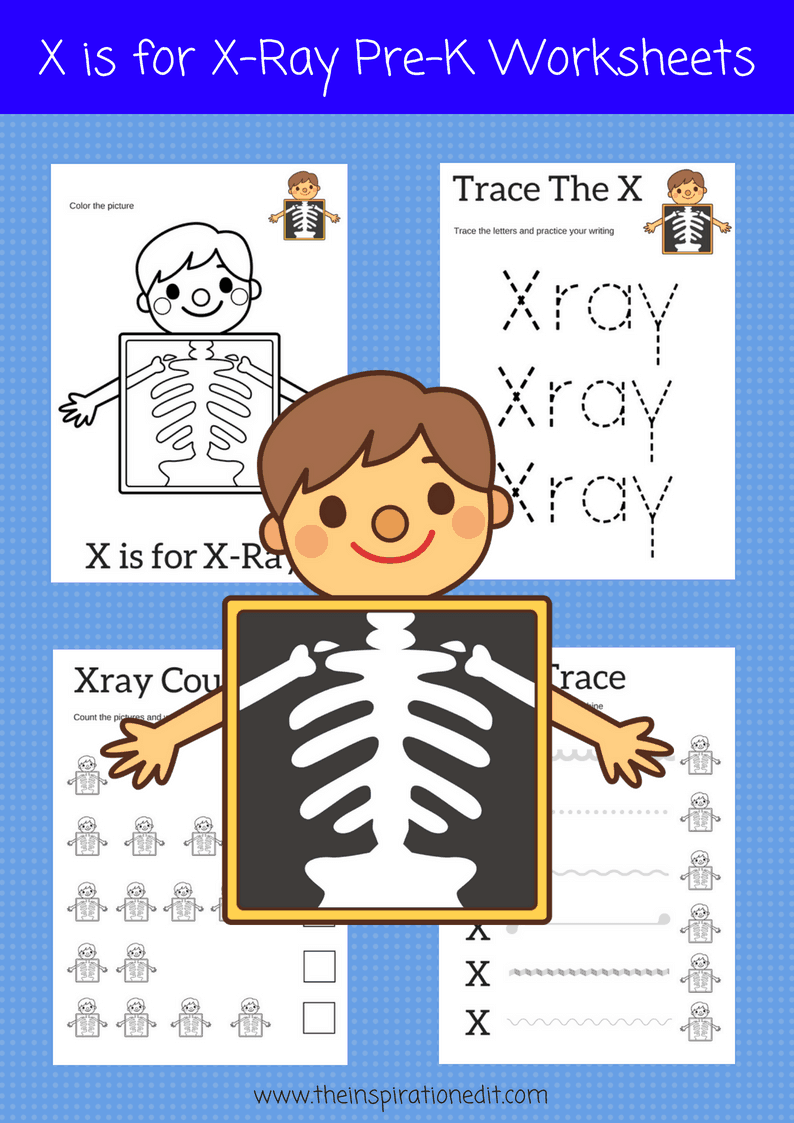 graphic about Printable X Rays called Xray Letter X Preschool Printable Sport · The Motivation