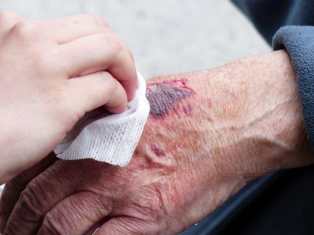 Ways To Get Rid Of Bruises