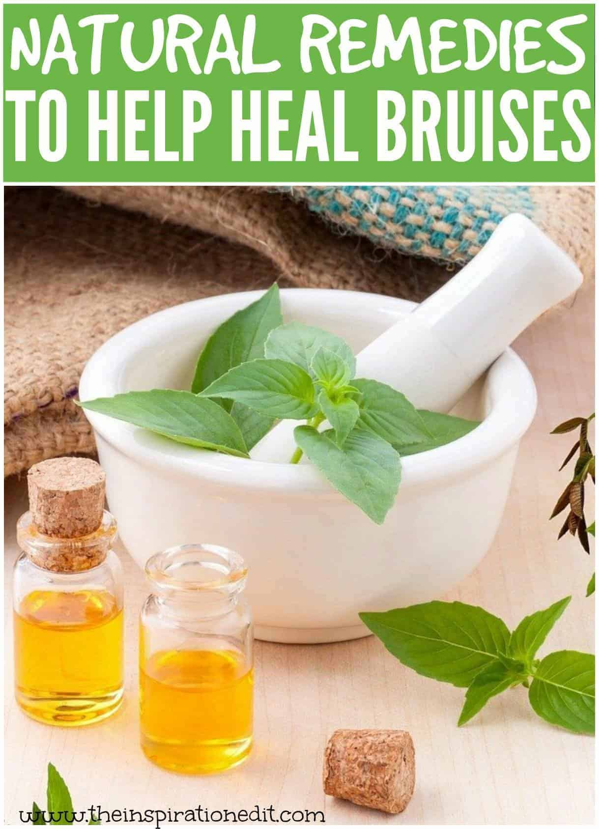 How To Get Rid Of Bruises Using Natural Remedies