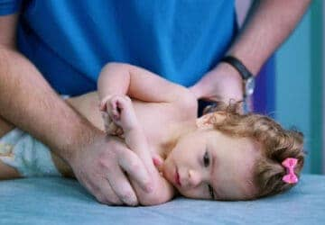 baby with cerebal palsy